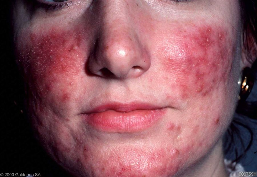 Easy To Understand Guide On Laser Rosacea Treatment Types