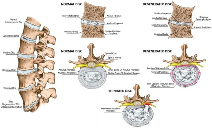 Spine and Disc