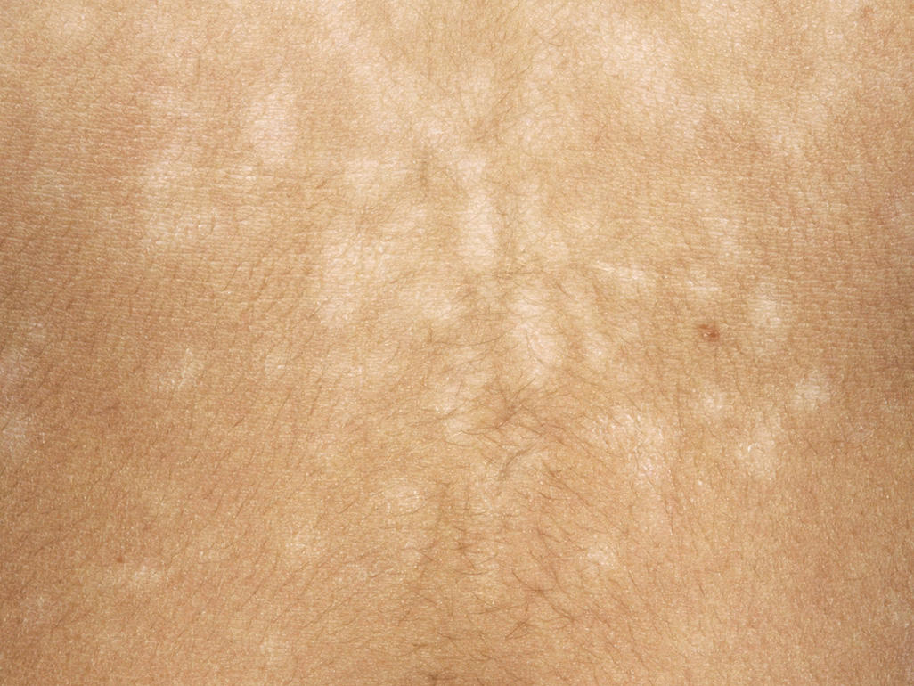 tinea versicolor african american skin - pictures, photos