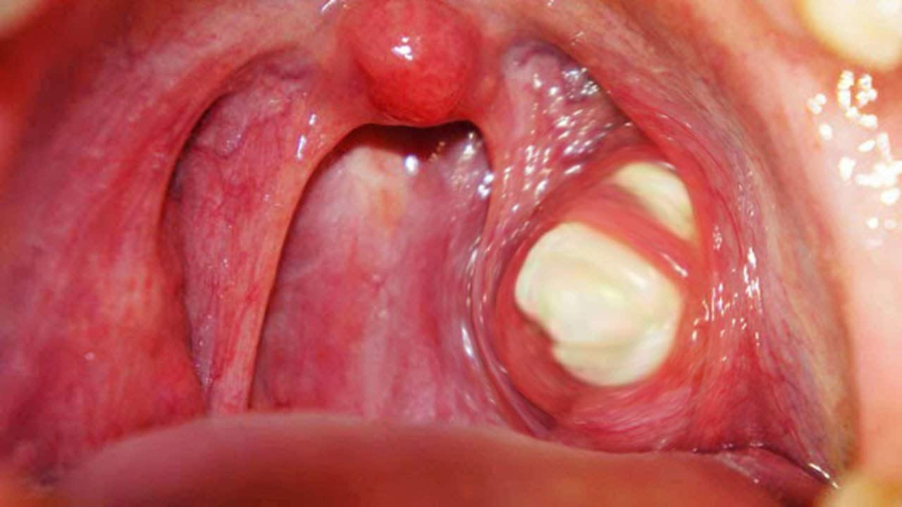 Difference Between Tonsil Stones And Tonsillitis
