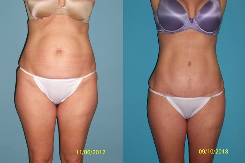 Tummy Tuck Abroad Cosmetic Surgery Abroad - New