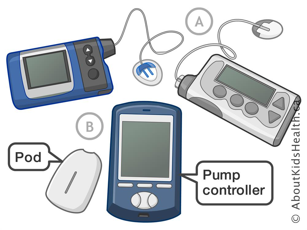 The Evolution Of The Insulin Pump