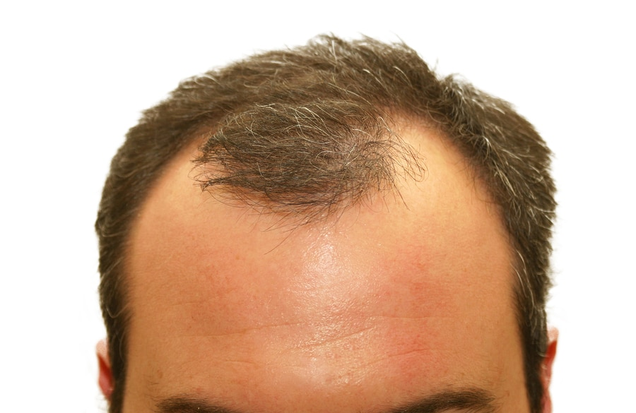 5 Common Myths About Hair Loss In Men