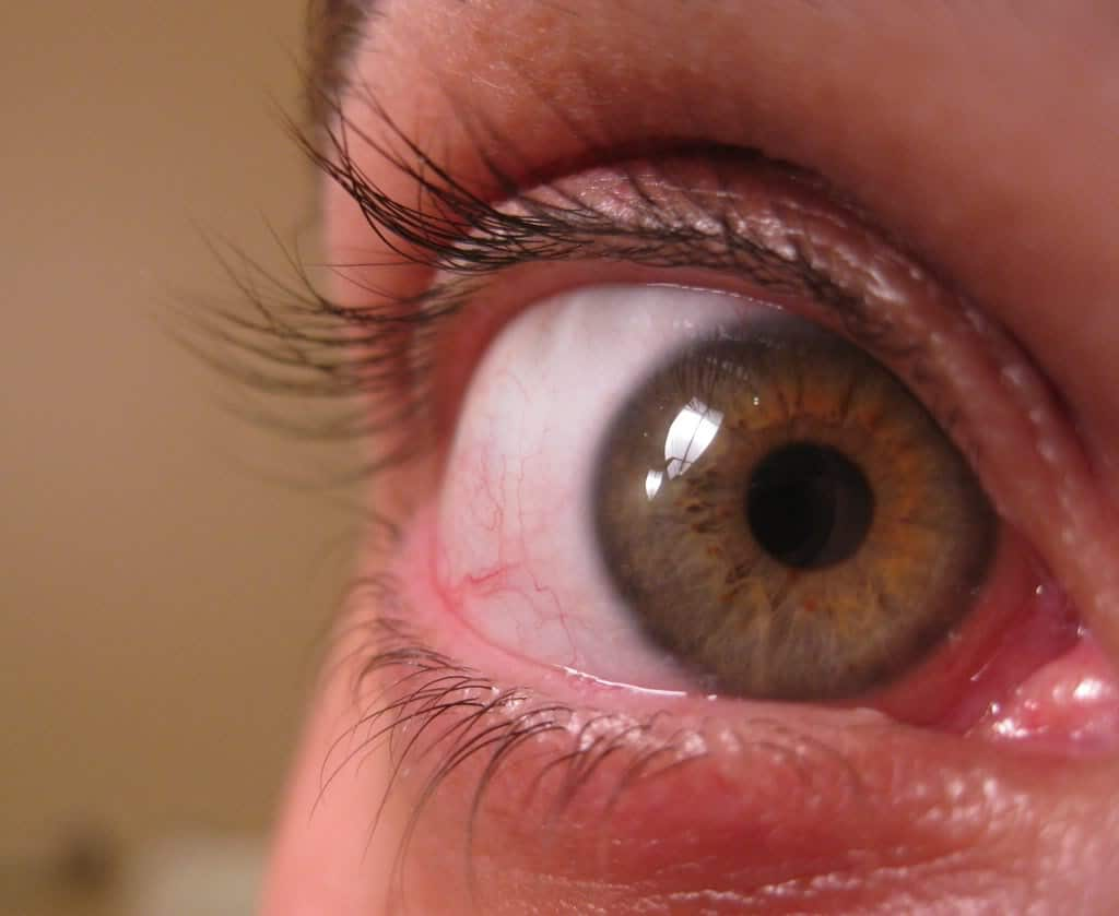 dry eyes  is there a natural solution