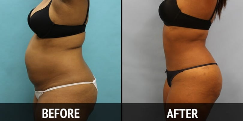 Types of Liposuction? How Does It Work?