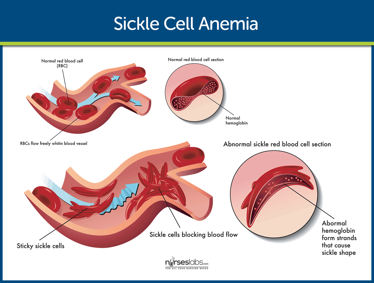 a study of sickle cell anemia Sickle cell anemia:  uganda, to enable the ministry of health to do a large cross-sectional research study, the uganda sickle surveillance study (us3),.