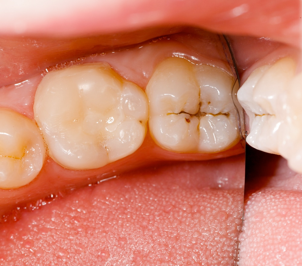 A Complete Guide To Tooth Restoration And Tooth Restoration Options