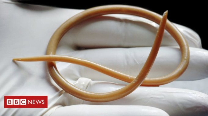 Parasitic Worms