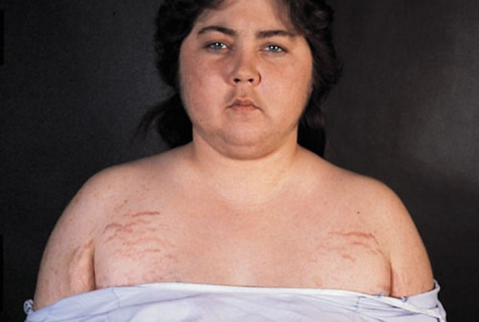 Cushing's Syndrome (Hypercortisolism)