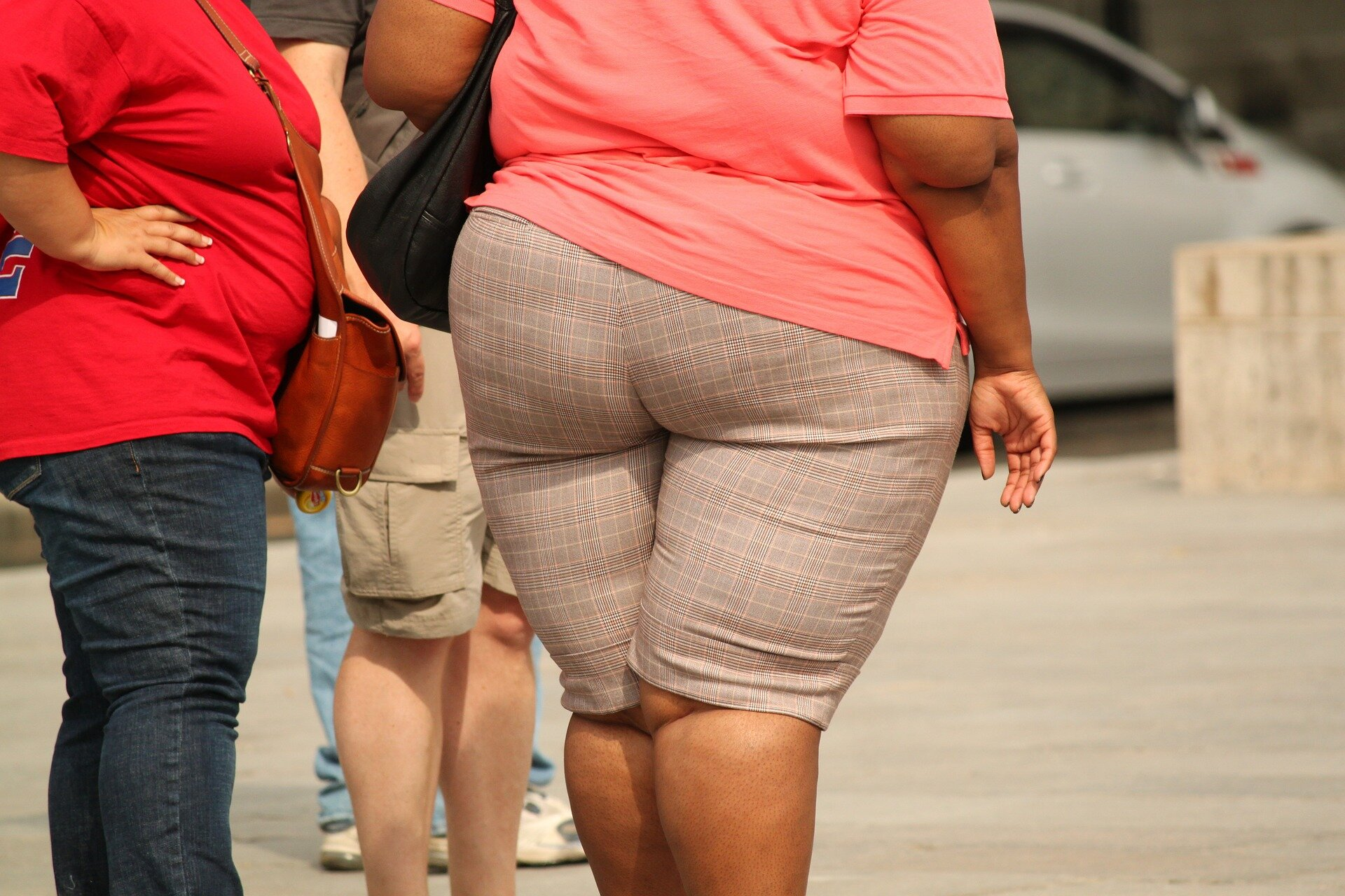 Obesity in Women