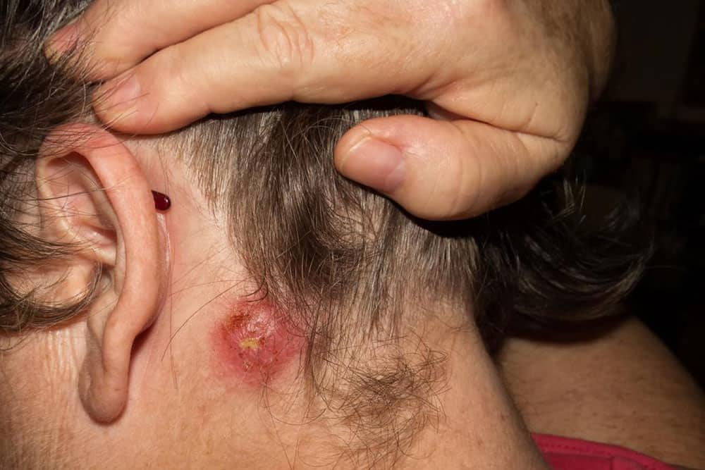 Staph Infections