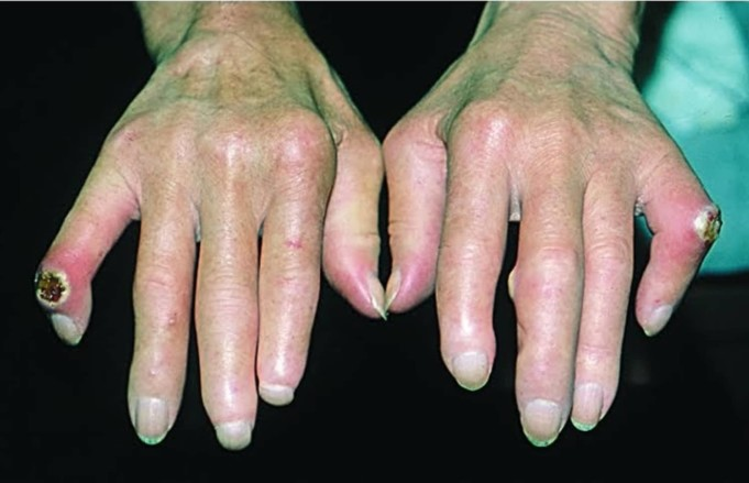 Scleroderma (Crest Syndrome)